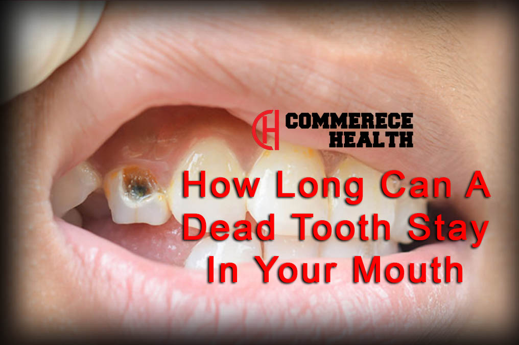 How Long Can A Dead Tooth Stay In Your Mouth